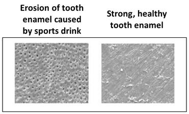 rsz_dental_erosion_slide